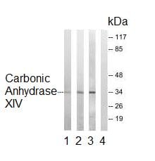 Western blot - Carbonic Anhydrase XIV antibody (ab92575)
