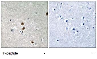 Immunohistochemistry (Formalin/PFA-fixed paraffin-embedded sections) - CtBP1 (phospho S422) antibody (ab92577)