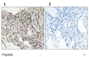 Immunohistochemistry (Formalin/PFA-fixed paraffin-embedded sections) - UEVLD antibody (ab92677)