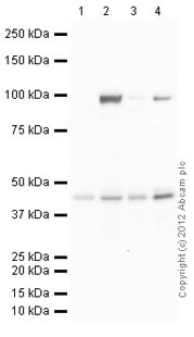 Western blot - Anti-Pyruvate Dehydrogenase E1-alpha subunit antibody (ab92695)