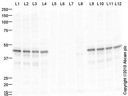 Western blot - Pyruvate Dehydrogenase E1-alpha subunit (phospho S293) antibody (ab92696)