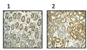 Immunohistochemistry (Formalin/PFA-fixed paraffin-embedded sections) - TCP1 beta antibody [EPR4084] (ab92746)