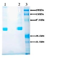 SDS-PAGE - Prorenin protein (His tag) (ab92748)
