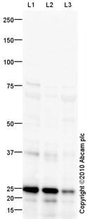Western blot - Cathepsin S antibody (ab92780)