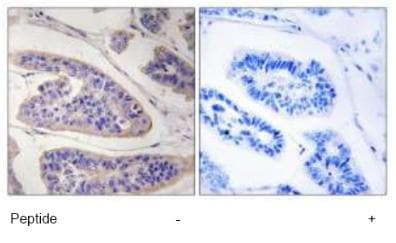 Immunohistochemistry (Formalin/PFA-fixed paraffin-embedded sections) - ENAH antibody (ab92849)