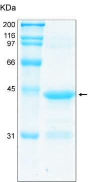 SDS-PAGE - Fragilis protein (Tagged) (ab92921)