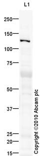 Western blot - VLDL Receptor antibody (ab92943)