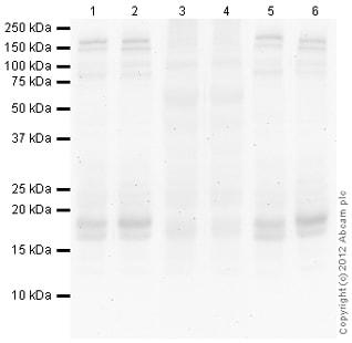 Western blot - Anti-Histone H2B (yeast) (phospho T129) antibody (ab92973)