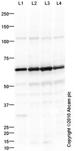 Western blot - GBA antibody (ab92997)