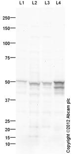 Western blot - Anti-GFAP delta antibody (ab93251)