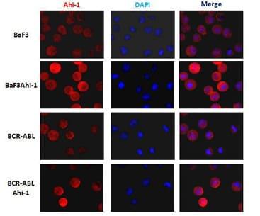 Immunocytochemistry/ Immunofluorescence - AHI1 antibody [M5] (ab93386)