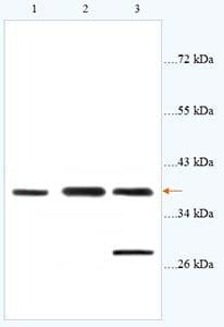 Western blot - CysLT2 antibody (ab93484)