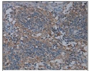 Immunohistochemistry (Formalin/PFA-fixed paraffin-embedded sections) - AICDA antibody (ab93596)