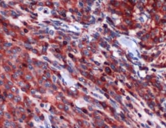 Immunohistochemistry (Formalin/PFA-fixed paraffin-embedded sections) - PIM2 antibody (ab93667)