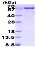 SDS-PAGE - PPIL2 protein (His tag) (ab93731)