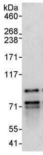 Immunoprecipitation - FOXP1 antibody (ab93776)