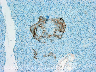 Immunohistochemistry (Formalin/PFA-fixed paraffin-embedded sections) - Anti-GDF 5 antibody (ab93855)