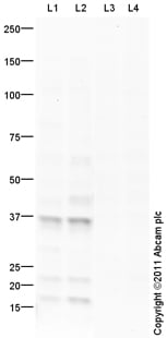 Western blot - Anti-glucose-6-phosphatase, catalytic subunit antibody (ab93857)