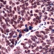 Immunohistochemistry (Formalin/PFA-fixed paraffin-embedded sections) - ERCC1 antibody (ab93960)