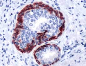 Immunohistochemistry (Formalin/PFA-fixed paraffin-embedded sections) - Cytokeratin 6 antibody (ab93962)