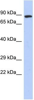 Western blot - Rabenosyn 5 antibody (ab94356)