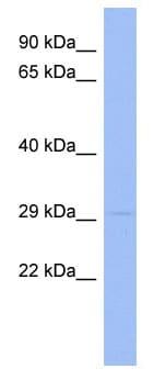 Western blot - RNF166 antibody (ab94409)