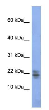 Western blot - Ribonuclease A antibody (ab94417)