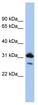 Western blot - RAP1B delta C antibody (ab94430)