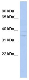 Western blot - ASPDH antibody (ab94432)