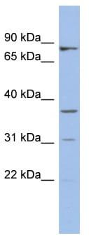 Western blot - OLAH antibody (ab94441)