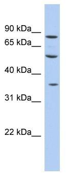 Western blot - FAM63A antibody (ab94443)