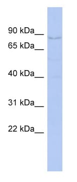 Western blot - Anti-CNOT3 antibody (ab94449)