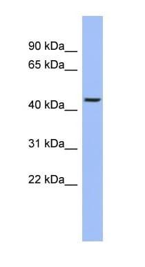 Western blot - TRIOBP antibody (ab94474)