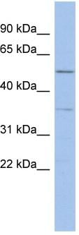 Western blot - ABHD15 antibody (ab94486)