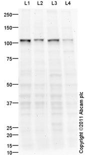 Western blot - UBE3A antibody (ab94493)