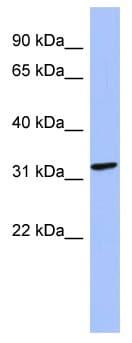 Western blot - MAGEB2 antibody (ab94497)