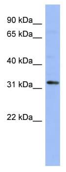 Western blot - HOX11 antibody (ab94528)