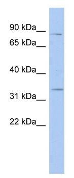 Western blot - STX19 antibody (ab94538)