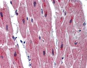 Immunohistochemistry (Formalin/PFA-fixed paraffin-embedded sections)-Anti-RBM24 antibody(ab94567)
