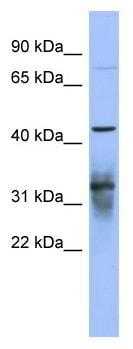 Western blot - PABPC5 antibody (ab94568)