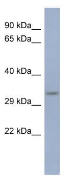 Western blot - PCBP3 antibody (ab94579)
