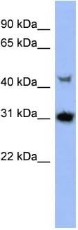 Western blot - Protein kinase Y linked antibody (ab94618)