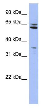 Western blot - HIF Prolyl Hydroxylases antibody (ab94626)