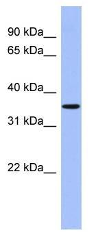 Western blot - PPM1A antibody (ab94627)