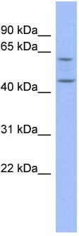 Western blot - Pentraxin 3 antibody (ab94649)