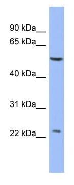 Western blot - PABPC1L2A antibody (ab94656)
