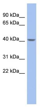 Western blot - ZNF302 antibody (ab94663)