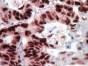 Immunohistochemistry (Formalin/PFA-fixed paraffin-embedded sections) - DAB substrate kit (ab94665)