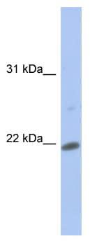 Western blot - Securin antibody (ab94689)