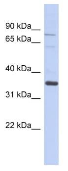 Western blot - NRBP2 antibody (ab94697)